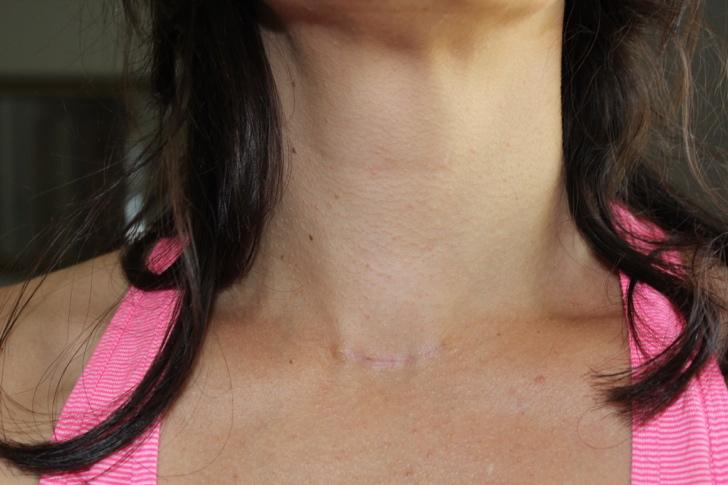 Thyroid Cancer Surgery