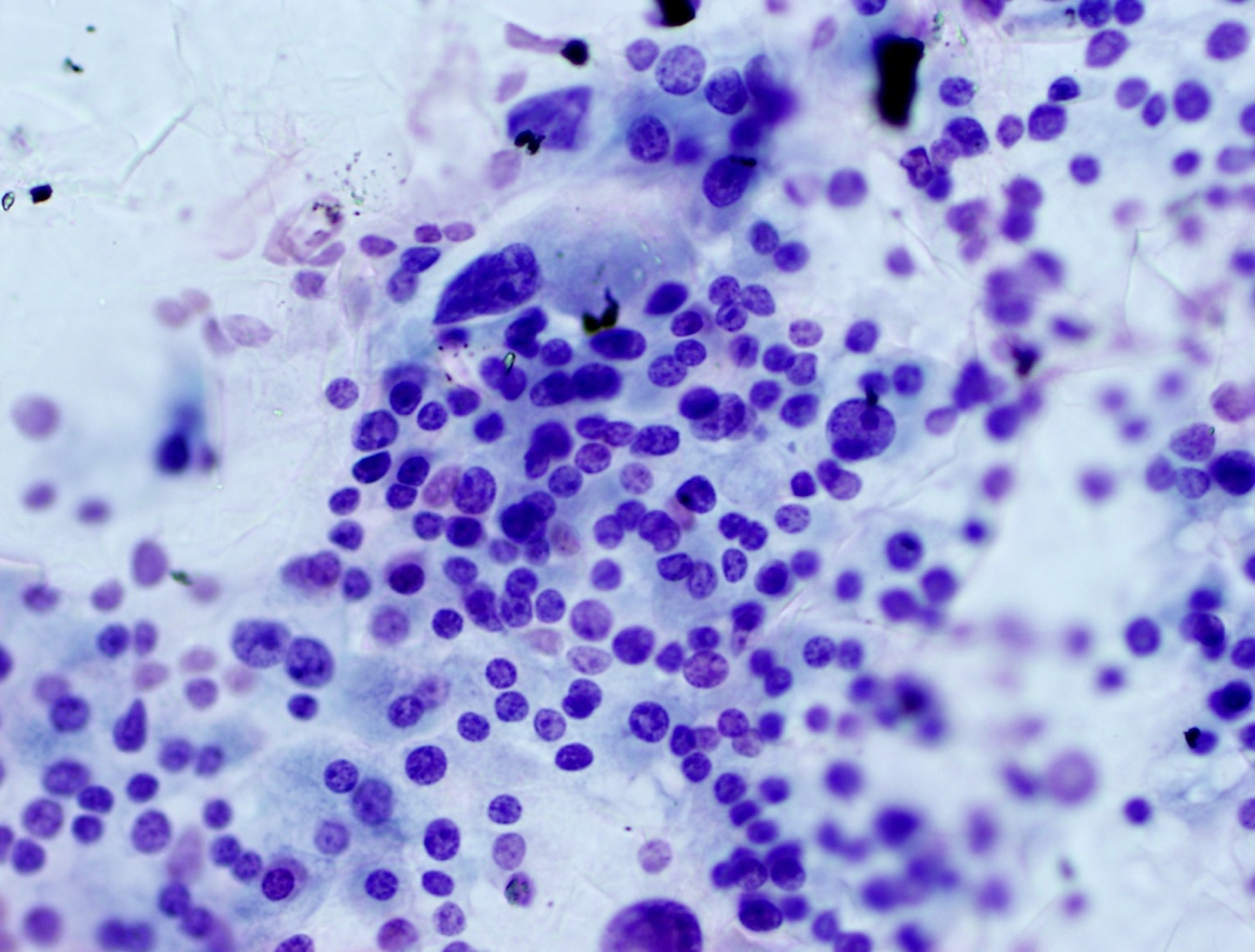 A thyroid cytology slide showing a good sampling of thyroid cells.