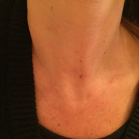 Testimonials And Great Stories From Thyroid Patients Of Gary Clayman Md