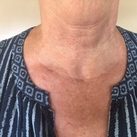 Testimonials And Great Stories From Thyroid Patients Of Gary