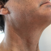 Testimonials and Great Stories From Thyroid Patients of Gary Clayman